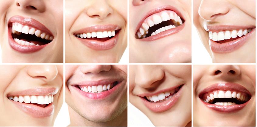 Art&Dentitstry_BleachingII