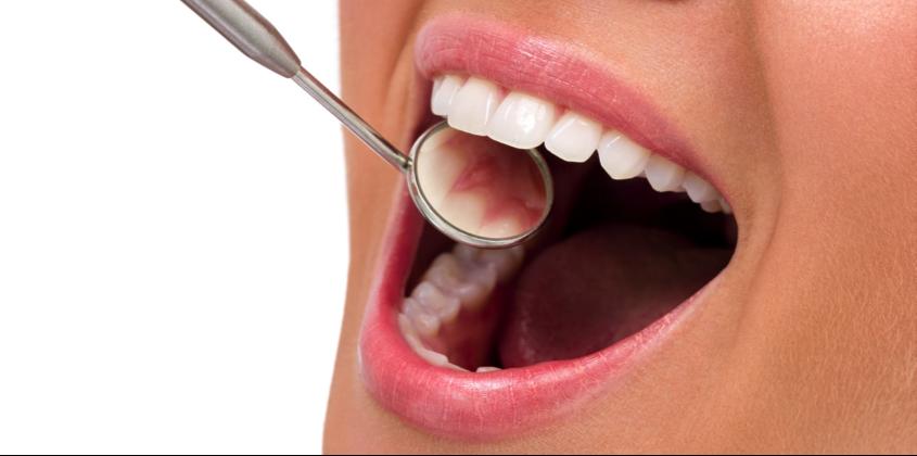 Art&Dentitstry_FüllungenII