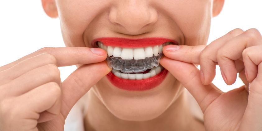 Art&Dentitstry_Zahnschiene