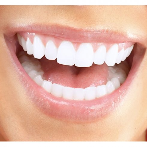 Zahnästhetik