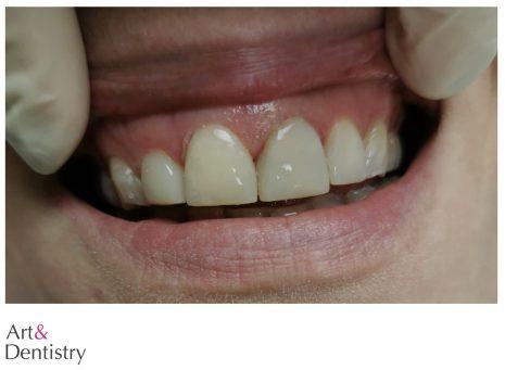 Veneers - Zahnästhetik to go